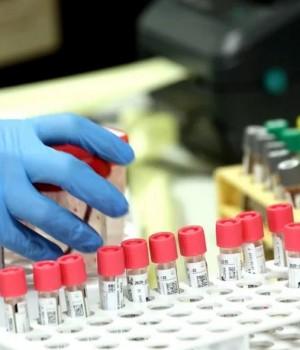 Resultados negativos para los seis hisopados de ayer